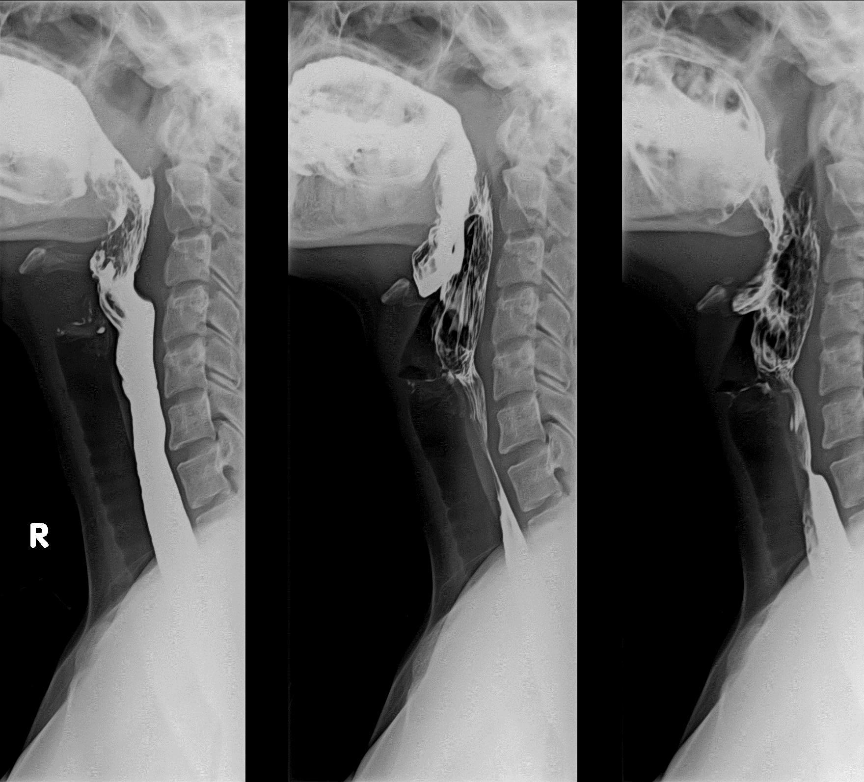 Barium Swallow (Barium Esophagram) What to Expect During Test